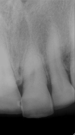 Диагностический снимок