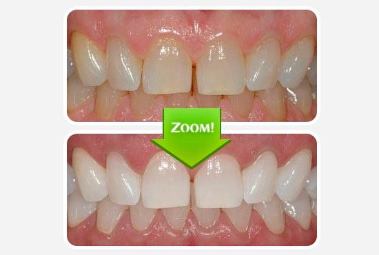 Как отбелить зубы если они желтые от природы