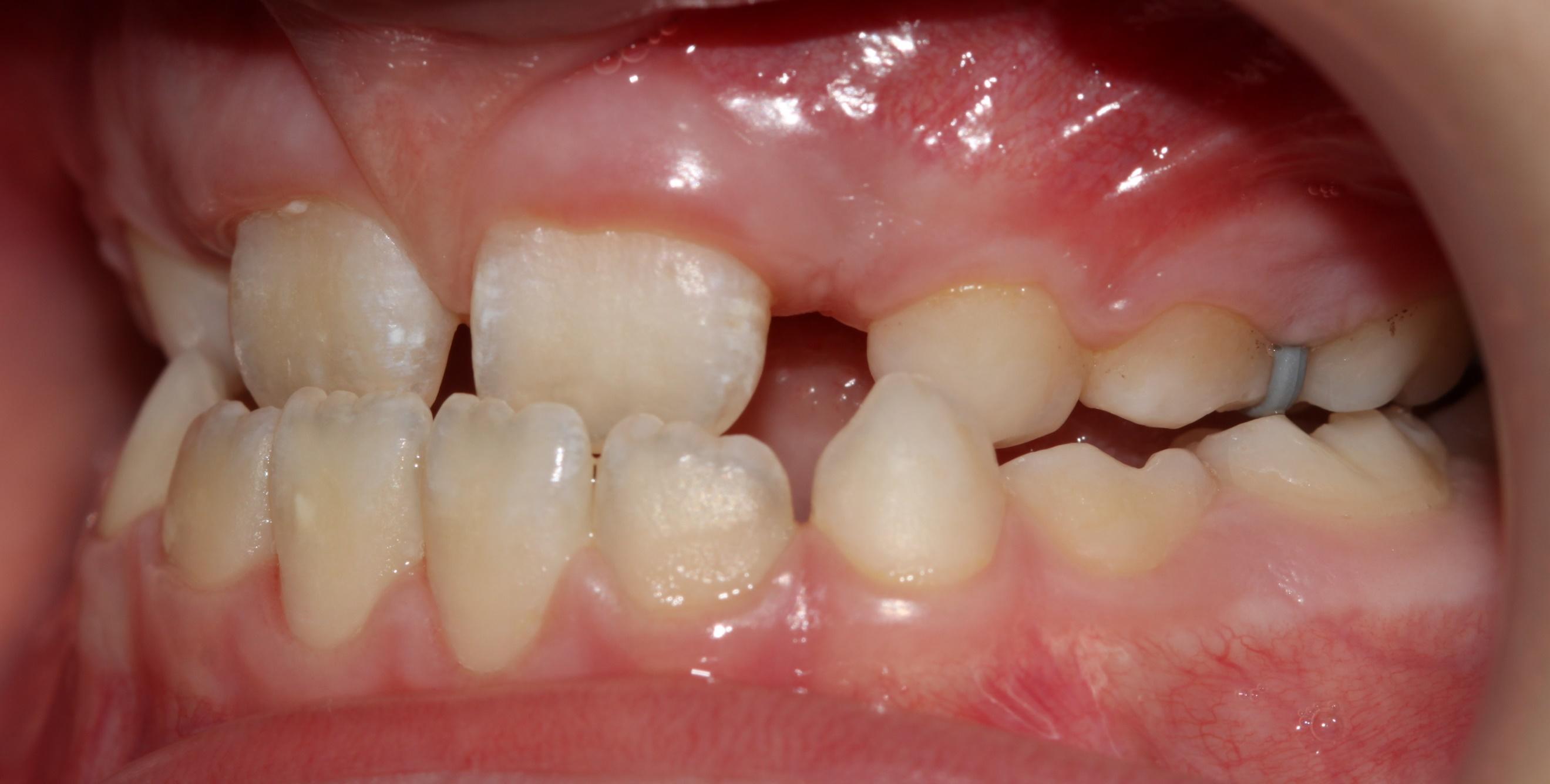 все свои стоматология официальный сайт виниры