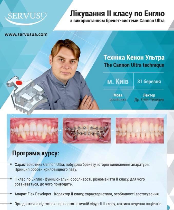 Лікування II класу по Енглю_Теперев-31-03-18