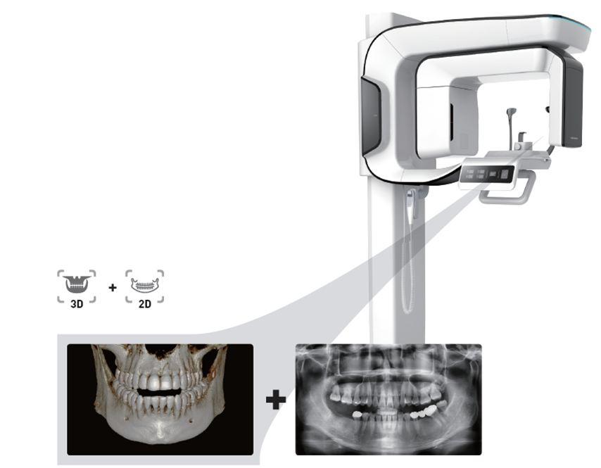 3 pax i3d smart 03 - Computer tomography