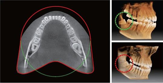 3 pax i3d smart 08 - Computer tomography