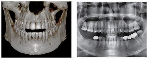 3d preimushhestva - Computer tomography