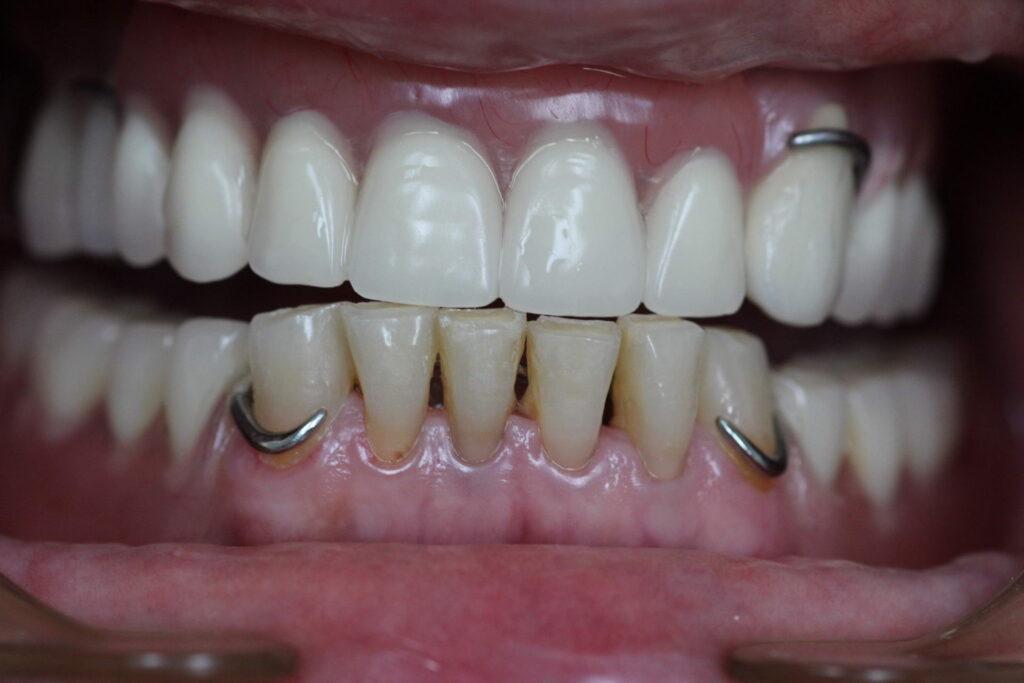 bugel 1024x683 - Протезирование зубов