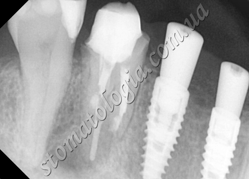 foto 3 1 1024x737 - Tooth extraction