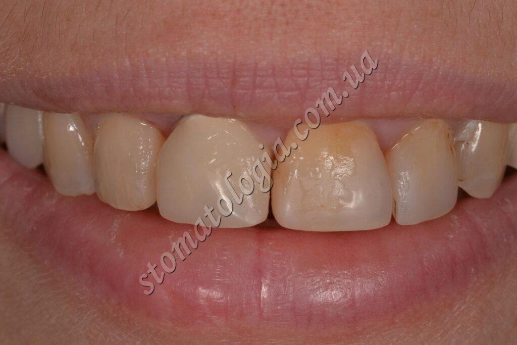implantatsiya perednih zubov po okonchanii lecheniya ustanovlena koronka na abatmente 1024x683 - Імплантація зубів (імплантологія)