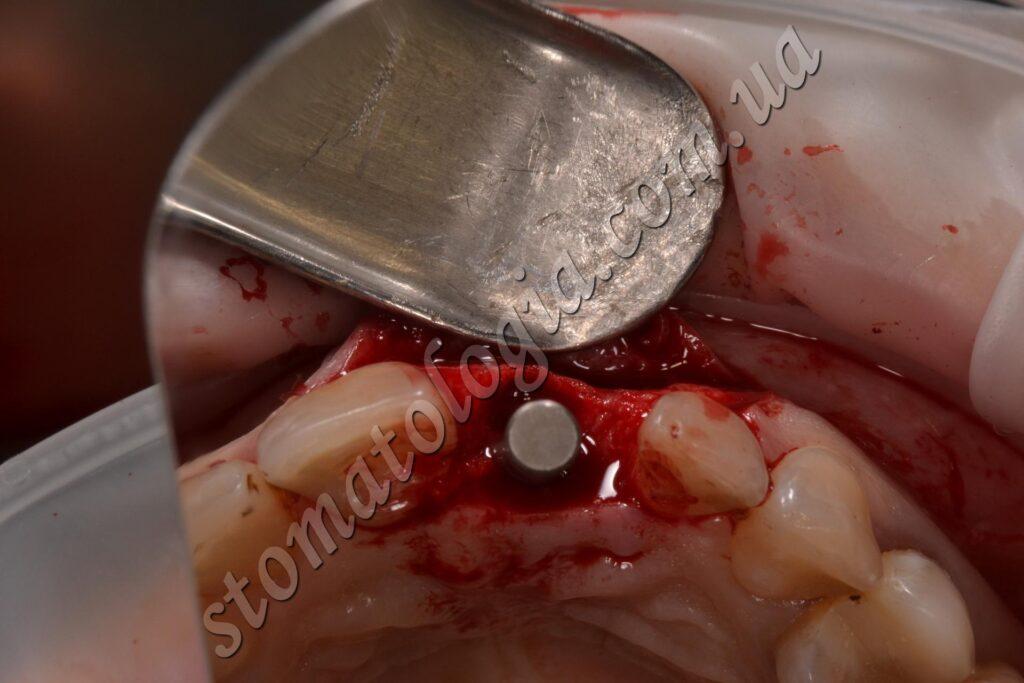 implantatsiya perednih zubov posle ustanovki implanta i zaglushki 1024x683 - Імплантація зубів (імплантологія)