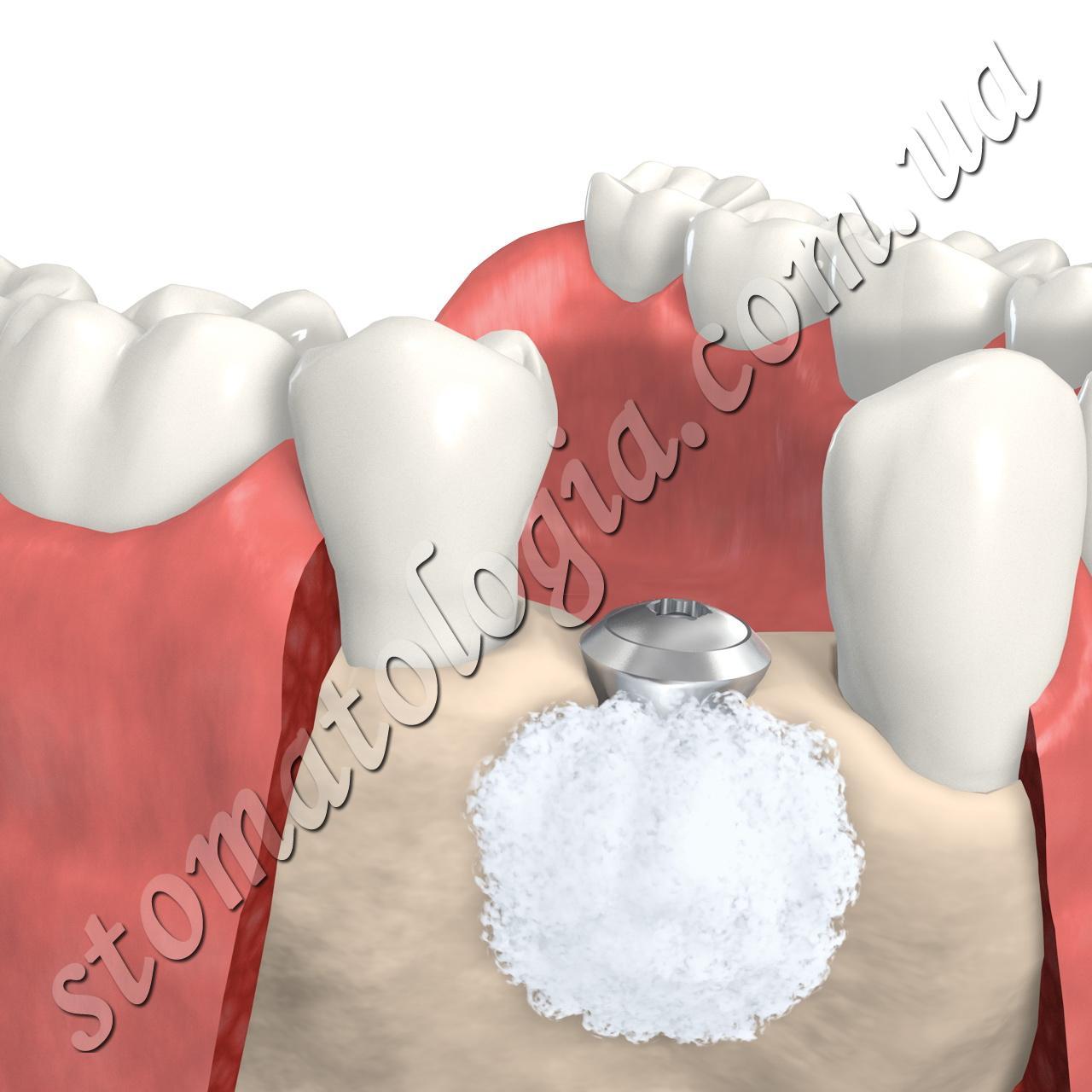 Наращивание кости при базальной имплантации зубов.