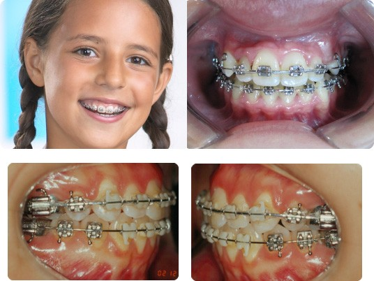 orthodontia 3 - Ортодонтія і установка брекетів