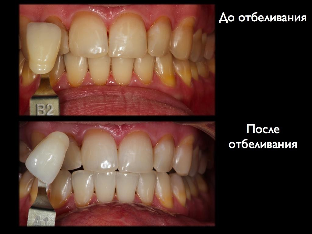otbelivanie 2 - Отбеливание зубов