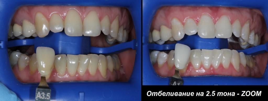 otbelivanie - Отбеливание зубов