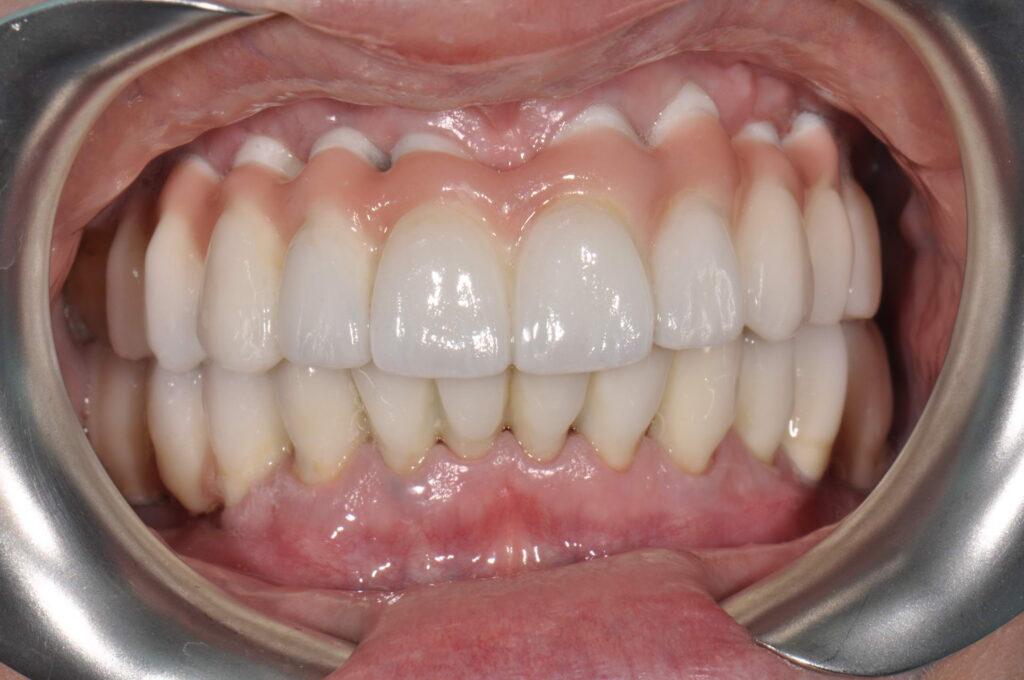 protezirovanie 1 1024x680 - Протезирование зубов