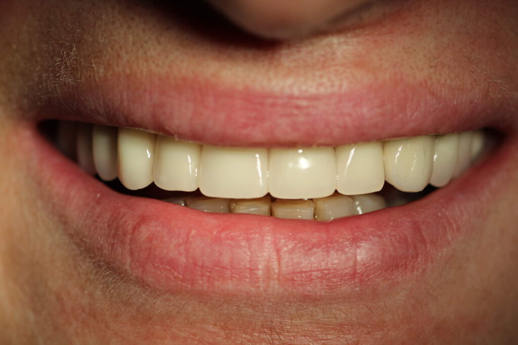 semn prot1 1024x683 - Протезирование зубов
