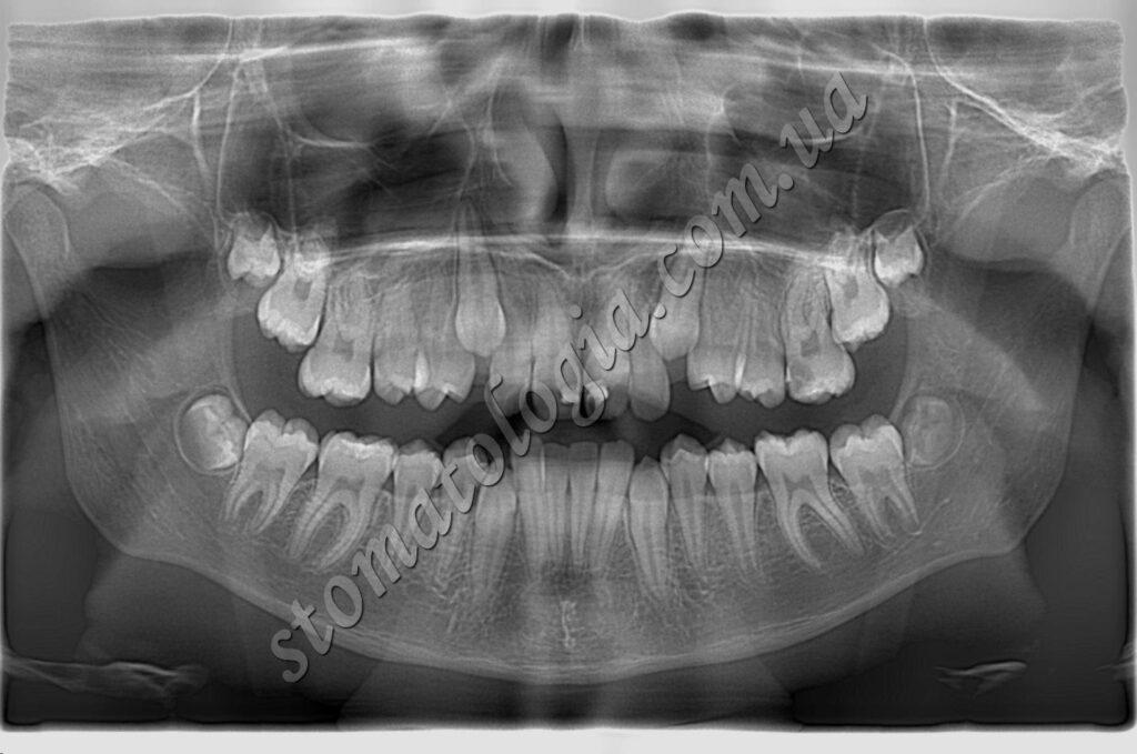 udalenie 1 1024x679 - Видалення зубів