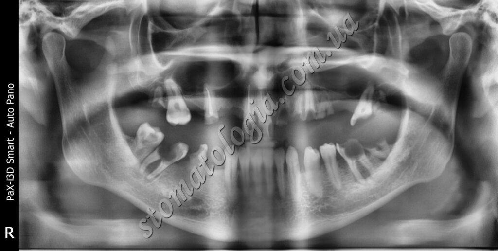 udalenie 8 1024x516 - Видалення зубів