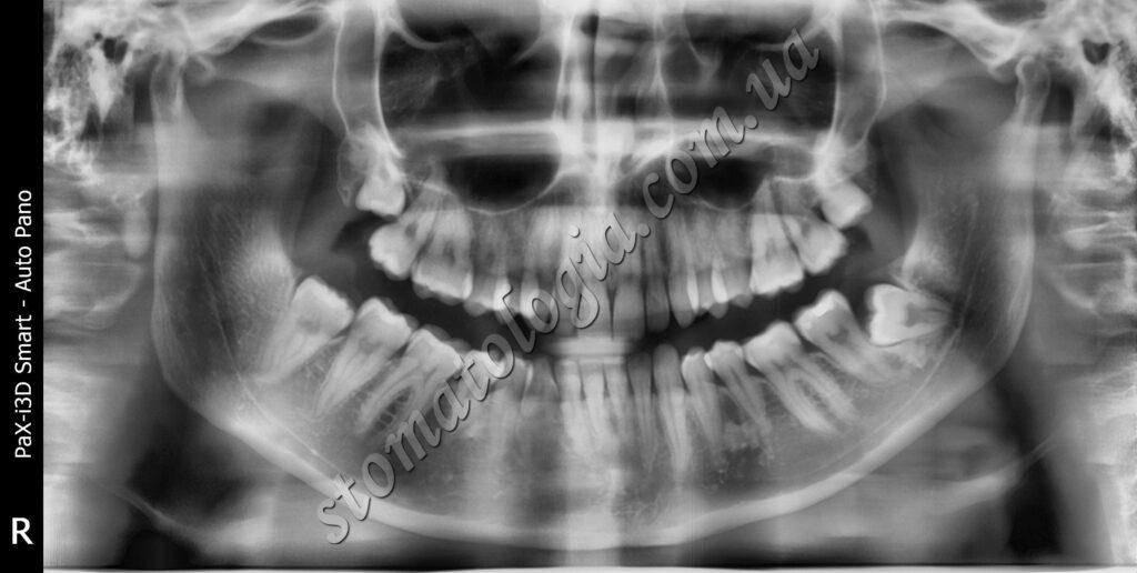 udalenie 9 1024x516 - Видалення зубів