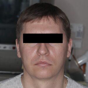 4 1 300x300 - Апикальная хирургия - инновационный подход в современной стоматологии