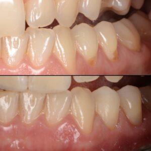 klinovidnyj defekt 300x300 - Лечение гиперчувствительности зубов